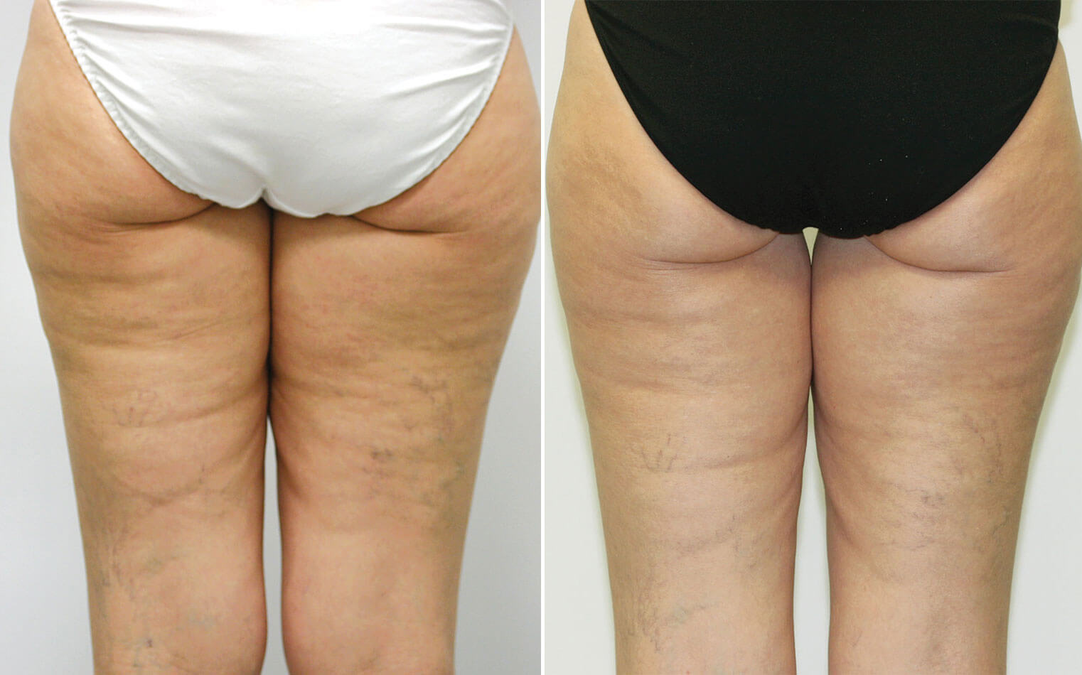 cellulite and cellulitis