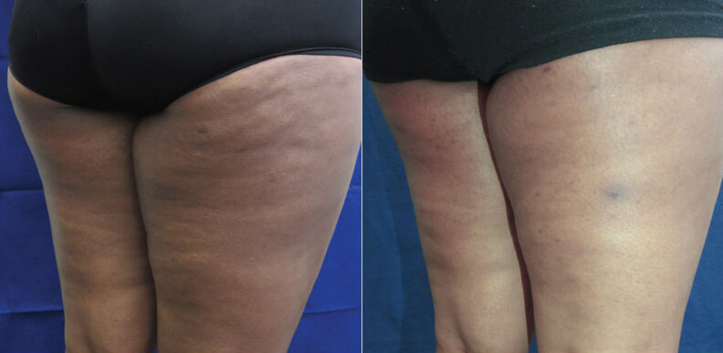 Cellulite Reduction Before Amp After Photos Lightrx Face