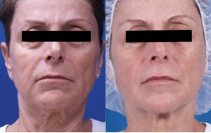 Skin Tightening - Before/After