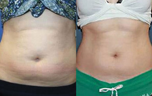 Body Contouring - Before/After