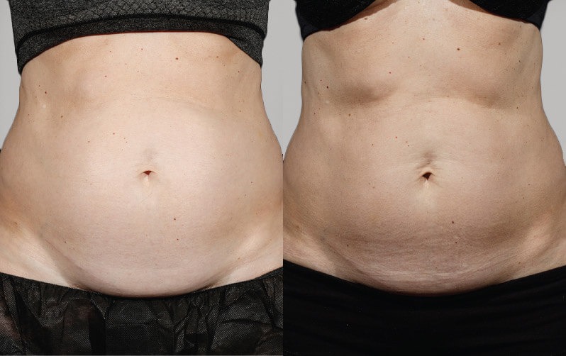 Sculpsure Before Amp After Photos Lightrx Face Amp Body