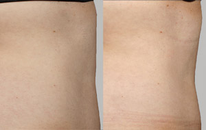 Laser Lipo - Before/After