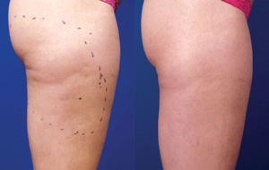 Cellulite Reduction - Before/After
