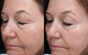 Jan Marini Skin Care - Before/After