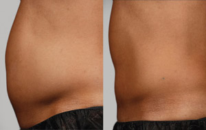 SculpSure - Before/After