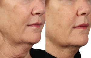 Skin Rejuvenation - Before/After