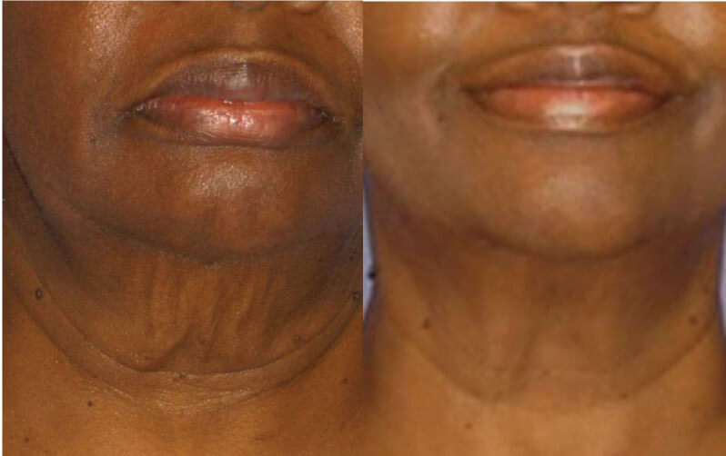 Face Skin Tightening - Before/After